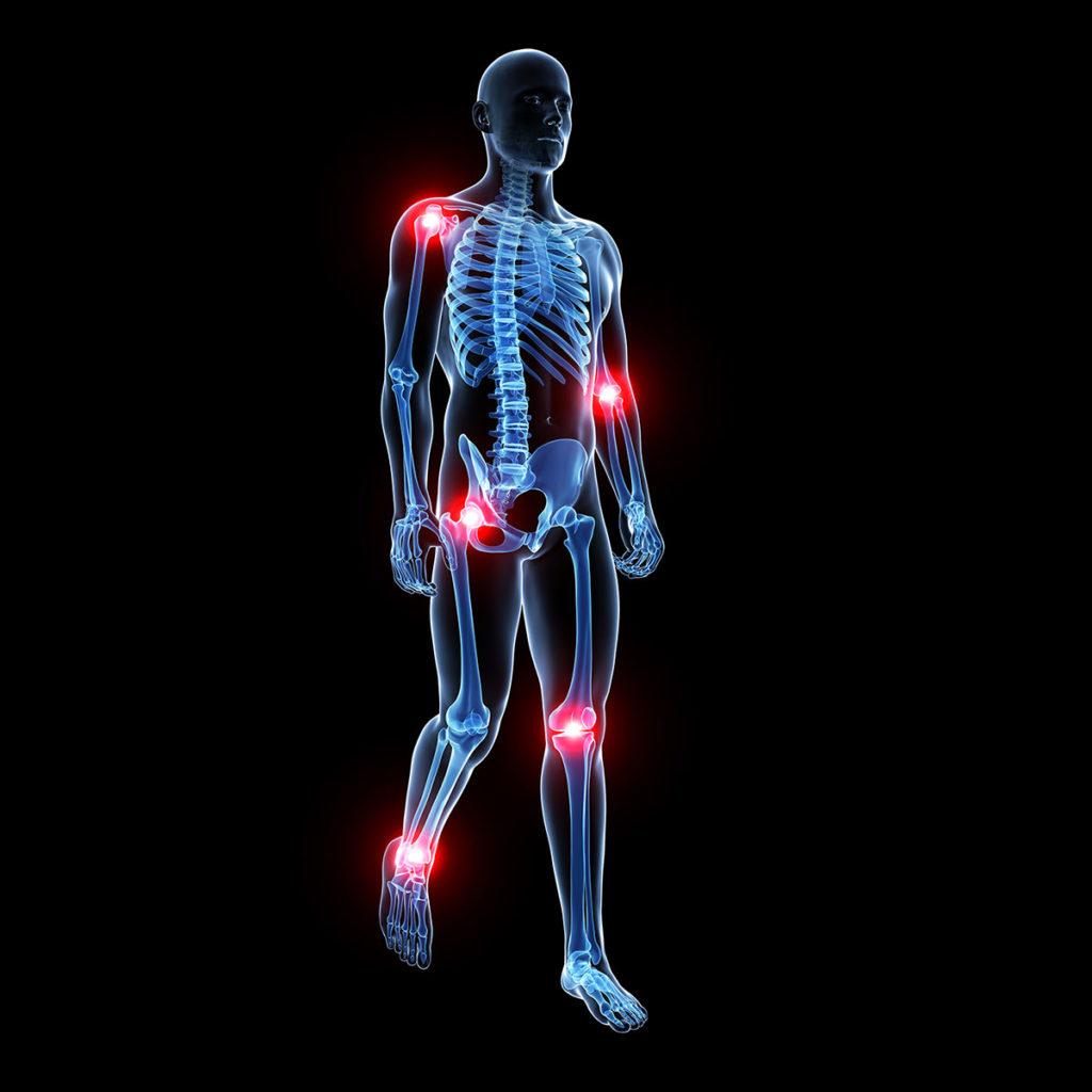 Erkrankungen des Bewegungsapparates